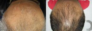 Hair Restoration Scranton PA