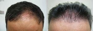 Hair Restoration Milford PA