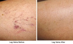 Leg_Veins-before_after