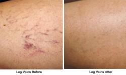 Leg_Veins-before_after