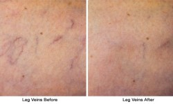 Leg_Veins2-before_after