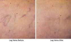 Leg_Veins2-before_after
