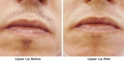 lip_before_after