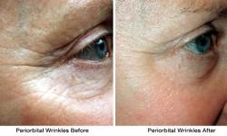 periorbital-wrinkles-before_after