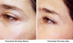 periorbital-wrinkles2-before_after
