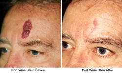 Port_Wine_Stain-before_after