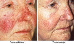 Rosacea1-before_after