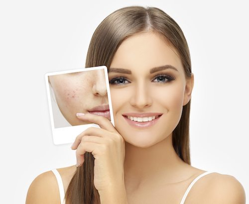 Acne Conditions We Treat