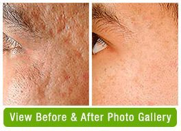 Acne Scar Treatment Before & After Gallery