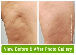 Cellulite Reduction Before & After Gallery