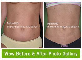 Liposuction Scranton PA