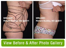Laser Liposuction Before & AFter Gallery
