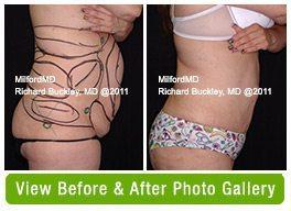 Laser Liposuction Scranton PA