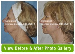 Neck Lift Before & After Gallery