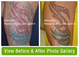 Tattoo Removal Before & After Gallery