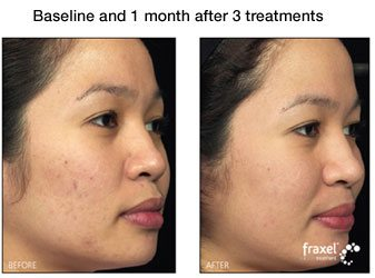 Fraxel for Facial Acne
