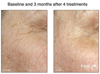Fraxel for Facial Acne