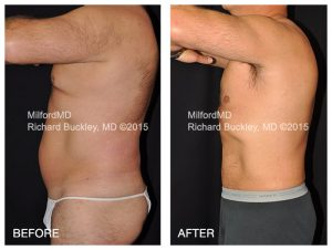 ", MilfordMD Announces Its October ""Necktober"" CoolSculpting Special"