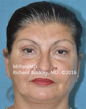 After Eyelid Lift (Blepharoplasty)