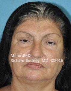 Blepharoplasty (Eyelid Lift) Before - Case #36093