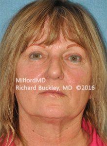 Blepharoplasty (Eyelid Lift) After - Case #36094