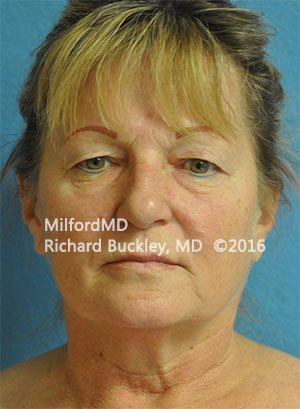 Before Eyelid Lift (Blepharoplasty)