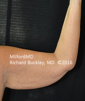 Before Brachioplasty Arm Lift