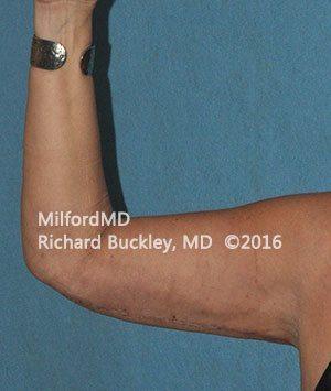 After Brachioplasty Arm Lift