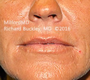 After Lip Augmentation