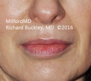 After Restylane® Lip Augmentation