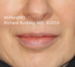 Before Restylane® Lip Augmentation