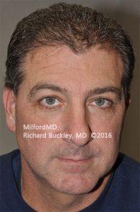 Blepharoplasty (Eyelid Lift) After - Case #36106