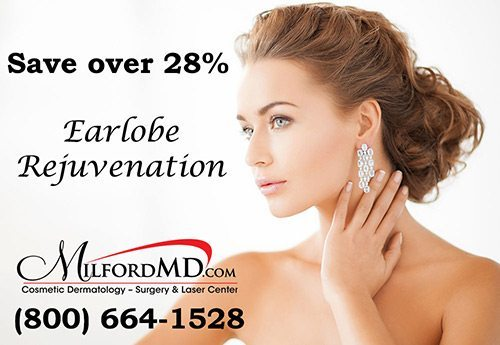 Save $200 on earlobe rejuvenation at MilfordMD.com.