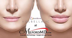 , Cosmetic surgeon Dr. Richard Buckley Reports Early Experience with Newly Adopted Juvéderm Volbella XC Filler – Approved for Lips and Fine Lines Around the Mouth