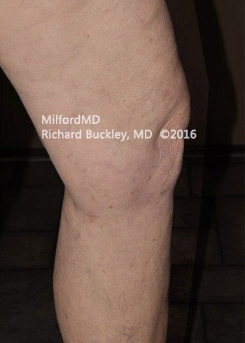 After Sclerotherapy Vein Treatment
