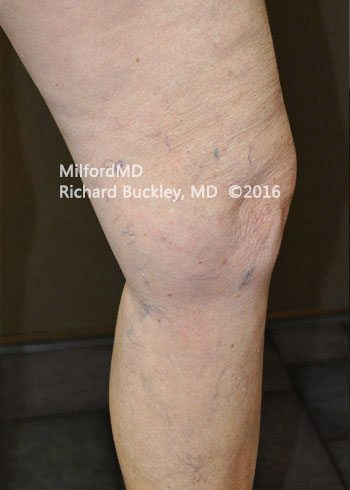 Before Sclerotherapy Vein Treatment