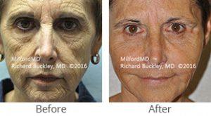 Autologous Fat Transfer Before & After- Case #36111