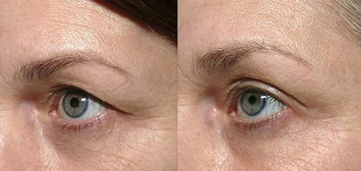 Eyelid Lift at MilfordMD