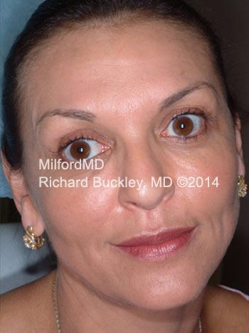 After Liquid Facelift using Dysport®