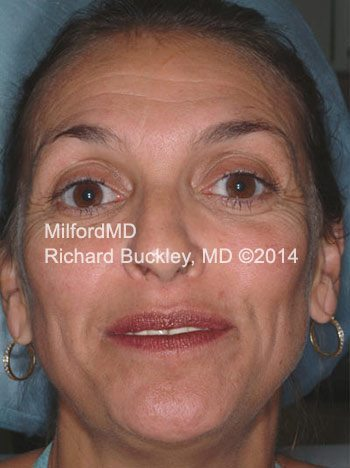 Before Liquid Facelift using Dysport®