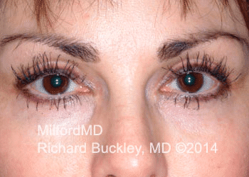 After Latisse® Eyelash Growth