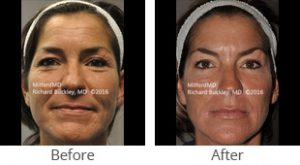 Liquid Facelift Before & After - Case #36132
