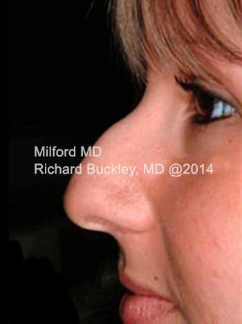 Before Non-Surgical Rhinoplasty