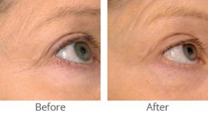 SmoothBeam™ Wrinkle Reduction Before & After Case #35829