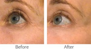 SmoothBeam™ Wrinkle Reduction Before & After Case #35830