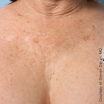 After Ultherapy® Décolletage Rejuvenation