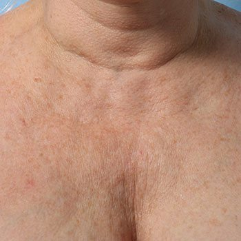 Before Ultherapy® Décolletage Rejuvenation