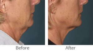 Ultherapy® Face and Jowl Llift - Case #35847