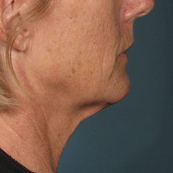 After Ultherapy® Jowl & Neck Lift