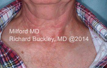 After VBeam® Vascular Reduction